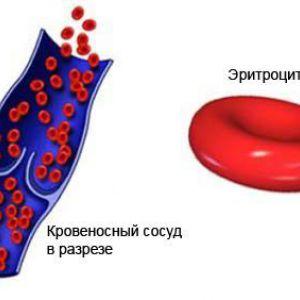 Аутоімунна гемолітична анемія - гемолітична анемія