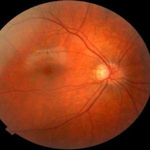Ангіопатія сітківки ока і нижніх кінцівок. Симптоми, причини, лікування. Особливості ангиопатии судин сітківки у дітей