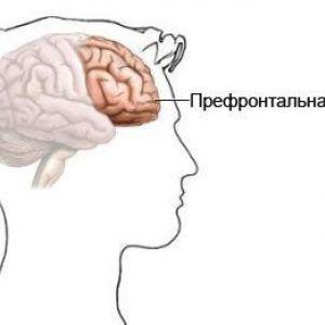 Антисоціальна розлад особистості - психопатія - соціопатія