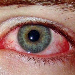 Хвороба бехчета: причини, симптоми, лікування