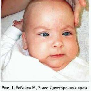Дитяча вроджена катаракта