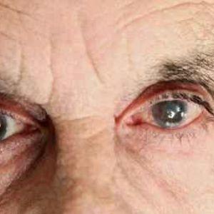 Діабетична катаракта