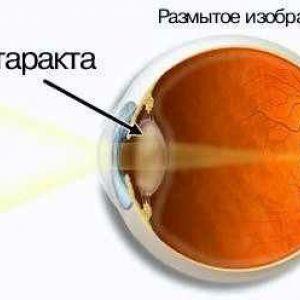 Діагностика катаракти картинки