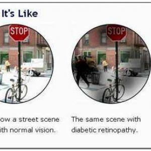 Диференціальна діагностика катаракти і відшарування сітківки