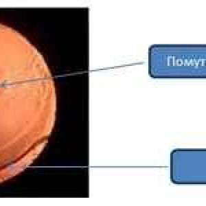 Дісцізія вторинної катаракти причини