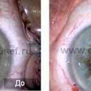 Факоемульсифікація катаракти