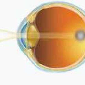 Гімнастика для очей при початковій стадії катаракти