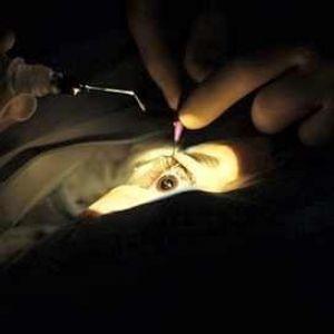 Хірургія катаракти в ізраїлі