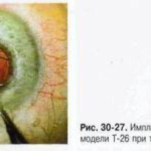 Інтракапсулярна екстракція катаракти з імплантацією іол
