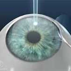 Дослідження показало: видалення катаракти лазером більш безпечно