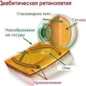Зміна товщини хориоидеи після панретинальной фотокоагуляции у пацієнтів з діабетичною ретинопатією