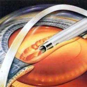 Екстракція катаракти без імплантації іол