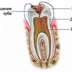 Карієс - руйнування зубів
