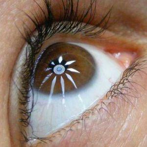 Кортикостероїди при акантамебного кератиті збільшують ризик погіршення зору