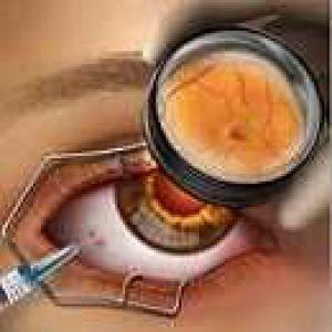 Лазерна фотокоагуляція, посилена дією бевацізумаба, дозволяє зберегти контрастність зору хворим з пдр