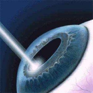 Лазерне лікування катаракти протипоказання