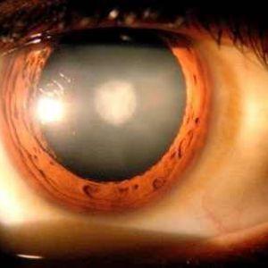 Лікування катаракти по омс