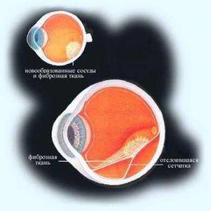 Лікування катаракти в ярославлі