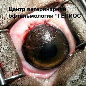 Лікування вродженої катаракти в китаї