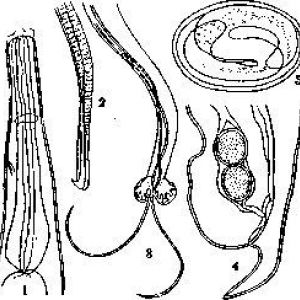 Metastrongylus elongatus