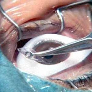 Операція катаракта в пермі
