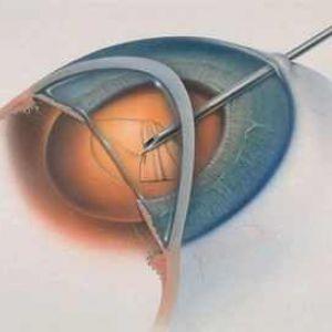 Операція з видалення катаракти