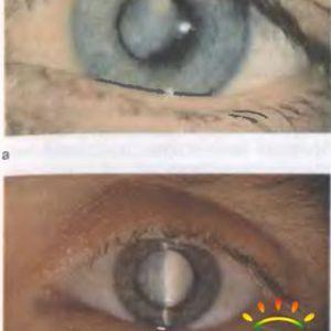 Ускладнення набухає катаракти