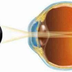 Ускладнена катаракта класифікація