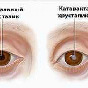 Від чого з`являється катаракта
