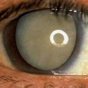 Набряк очі після операції катаракти