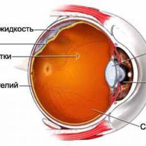 Відшарування сітківки ока - відшарування сітківки