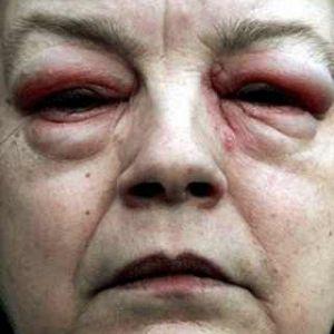 Тауфон від катаракти відгуки