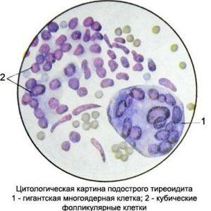Тиреоїдит - характеристика пунктата щитовидної залози