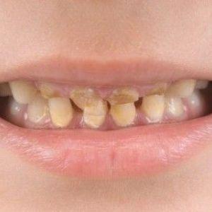 Види, симптоми і лікування карієсу зубів