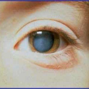 Вроджена катаракта ока