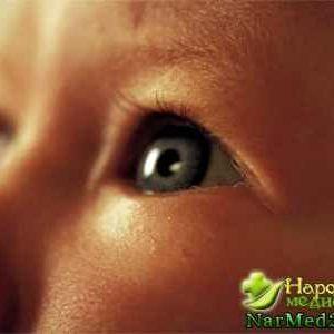 Вроджена катаракта причини