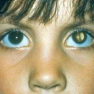 Вроджена катаракта
