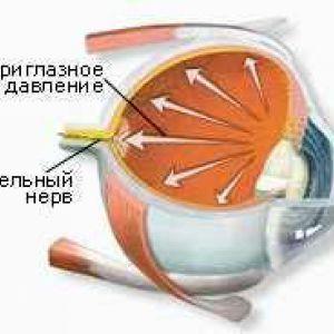 Вторинна катаракта ускладнення