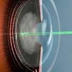 Вторинна катаракта