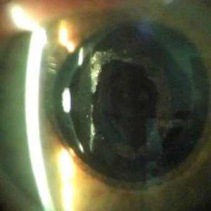 Заднекапсулярной катаракта