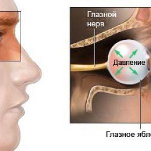 Відкритокутова глаукома - хронічна глаукома
